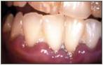 Parodontologie Foto 3